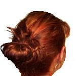 Die Magenschmerzen der Haarausfall